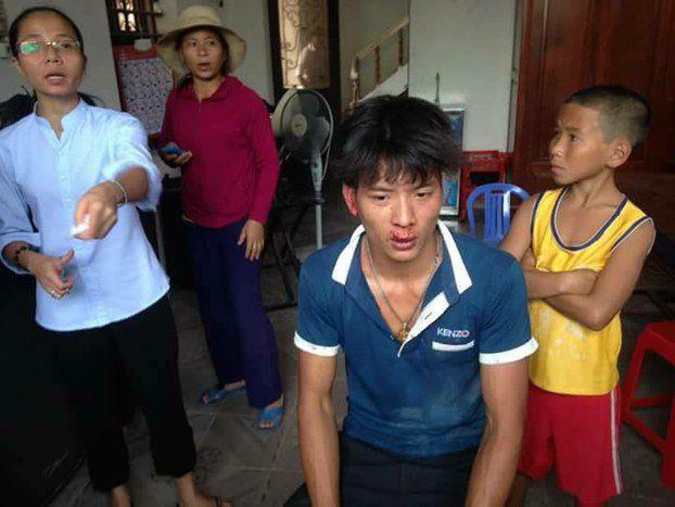 Một người dân, cũng là giáo dân Công giáo, tại huyện Quỳnh Lưu, tinh Nghệ An bị hành hung đến thương tích nặng vào sáng ngày chủ nhật 28 tháng 5.